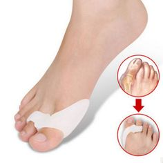 Only US$2.62 , shop Pair Of Silicone Hallux Valgus Orthotics Toe Separators at Banggood.com. Buy fashion Posture Corrector online.