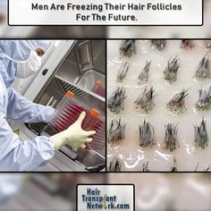 Men Are Freezing Their Hair Follicles For The Future. – Best Art images in 2019 Bald Spot Treatment, Best Hair Loss Treatment, Hair Transplant Results, Hair Transplant Surgery, What Causes Hair Loss, Prevent Hair Loss, Hair Cloning, Apple Cider Vinegar Uses, Hair Loss Reasons