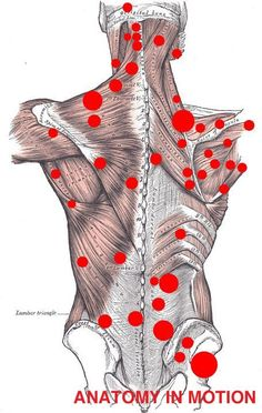 Trigger point therapy in Las Vegas.