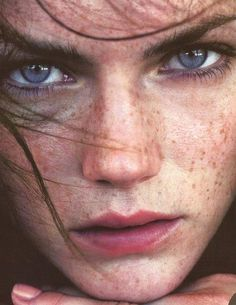 pretty freckles