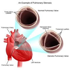 Pulmonary stenosis is a congenital (present at birth) defect that occurs due to abnormal development of the fetal heart during the first eight weeks of pregnancy.The pulmonary valve is found between the right ventricle and the pulmonary artery. It has three leaflets that function like a one-way door, allowing blood to flow forward into the pulmonary artery, but not backward into the right ventricle.