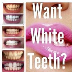 What white teeth?? See results after application, non peroxide tooth paste dm for more info  #teethwhitening #whitening #smilemore