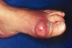gout in the toe