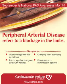 September is Peripheral Arterial Disease Awareness Month. #PAD is caused by plaque build-up or blockages in an area of the body outside of the heart such as the legs. Symptoms include ulcers, leg pain, cramping, swelling and discoloration. A simple, painless ultrasound can test the blood flow in your legs to determine your risk of PAD. Consult with your doctor if you think you may be at risk, or call the CIS clinic near you.