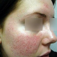 Možná se vám už stalo, že vaše pokožka zrudla poté, co jste vypili něco horkého, kořeněného, případně po přechodu z chladného prostředí do tepla. Pokud máte podobné příznaky častěji, může jít o predispozici chronického kožního