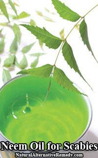 Using Neem Oil for Scabies | Natural Alternative Remedy - Neem oil is often used when treating skin problem known as scabies, which is an infestation of a kind of miniature mites called Sarcoptes scabiei. It may be added in one's bath water, utilized right on the skin, or used as a paste after combining it with turmeric powder.  #scabies #health #naturalhealth #homeremedies #herbs
