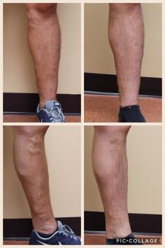 What a dramatic response to treatment! His leg feels great and looks amazing! #varicoseveins #legs #lookgoodfeelgood @drsclero