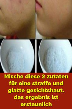 Mix these 2 ingredients for a firm and smooth facial skin.- Mix these 2 ingredients for a firm and smooth facial skin. The result is amazing Mix these 2 ingredients for a firm and smooth facial skin. The result is amazing -