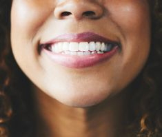 Probiotics, or healthy bacteria, may be able to help keep your mouth healthy. Here are five possible benefits of oral probiotics. Candida Albicans, Loch Im Zahn, How To Clean Retainers, Veneers Teeth, Kids Dentist, Human Teeth, Tooth Enamel, Stronger Teeth, Rides Front