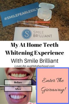 Teeth Whitening Before After Results