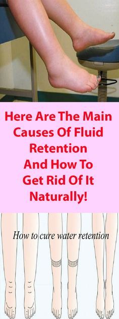 HERE ARE THE MAIN CAUSES OF FLUID RETENTION AND HOW TO GET RID OF IT NATURALLY!