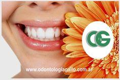 Centro Odontologico Gallo Blanqueamiento Dental Laser  www.odontologiagallo.com.ar