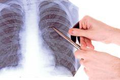 Ha félsz a rák betegségtől, ezt kötelező elolvasnod!!! Lymphatic System, Lungs