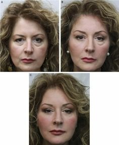 Camp Springs Eyelid Surgery and non-surgical procedures to rejuvenate your eyes. Juvederm and Restylane options for Blepharoplasty. #juvederm #blepharoplasty #eyelidsurgery #restylane #eyelift