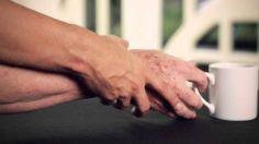 Ejercicios para pacientes con enfermedad de Parkinson