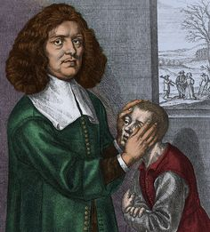 Valentine Greatrakes (14 February 1628 - 28 November 1683).  For many centuries, healing by stroking a patient was considered to be an effective treatment because it made use of the supposed phenomenon of animal magnetism. Here depicted Valentine Greatrakes, an Irish faith healer, curing a boy with this method.