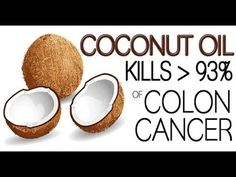 The Best Colon cancer treatment - EVEN THE DOCTORS ARE SHOCKED Kills 93% of Colon Cancer Cells - YouTube