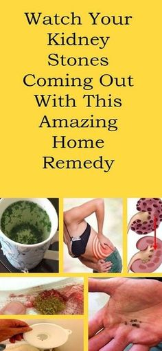 WATCH YOUR KIDNEY STONES COMING OUT WITH THIS AMAZING HOME REMEDY! Kidneys are one of the most important body organs since their main function is to discard all the toxins and the excess salt from …