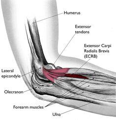 Tennis Elbow (Lateral Epicondylitis)-OrthoInfo - AAOS