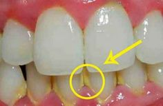 How To Remove Dental Plaque In 5 Minutes Naturally, Without Going To The Dentist !!!
