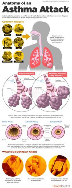 How exactly does an #asthma attack affect your lungs? This #infographic takes a closer look and offers information on common asthma triggers and symptoms.  Read more here: http://www.healthcentral.com/asthma/c/11407/169685/anatomy-asthma-infographic?ap=2012 #asthmamedications