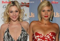 Shanna Moakler Plastic Surgery Before and After