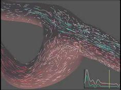 ▶ Blood flow in a normal carotid artery bifurcation - YouTube