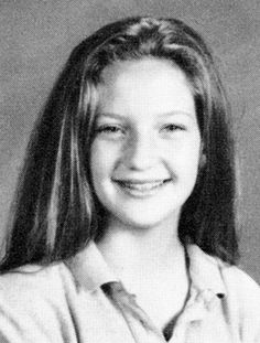 Kate Hudson: Celebrities with Braces