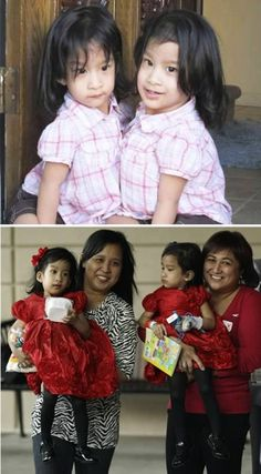 Angelica and Angelina Sabuco successful conjoined twin separation