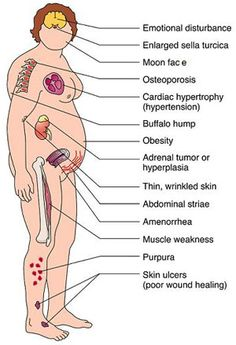 Clinical manifestations of Cushing's syndrome