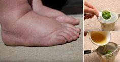PIES HINCHADOS - Este é o melhor remédio caseiro para pés e pernas inchados | Cura pela Natureza