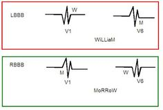 You can distinguish between LBBB (Left Bundle Branch Block) and RBBB (Right Bundle Branch Block) simply by looking at the QRS morphology in V1 and V6.  If the QRS looks like W in V1 and M in V6 it is LBBB. (WiLLiaM)  If the QRS looks like M in V1 and W in V6 it is RBBB. (MoRRoW)
