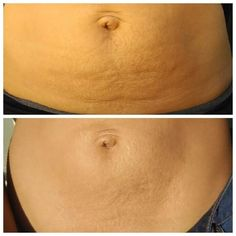 Bikini season is right around the corner! Are you ready?! Message me for information about our Contour cream to help with your dimply skin, scars and wrinkles. Find out how to get 5%, then 10%, then 10% off and free shipping with your order before March 31st. DJLKarty@gmail.com