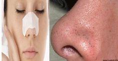 Combina estos tratamientos con una rutina de limpieza, lava tu rostro a menudo y acuérdate de retirarte el maquillaje por las noches. Debido a que los poros de la piel se obstruyen por la transpira… Wicca, Lava, Lose Belly, Healthy Living, Skin Care, Black Dots, Diets, Get Skinny, Remedies