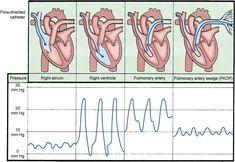pulmanary artery pressure | Pulmonary artery catheter waves