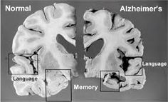 Alzheimer's Disease and Dementia present themselves as a decline in intellectual function. As these diseases progress, there is severe memory loss, particularly short-term memory, as well as disorientation and confusion.