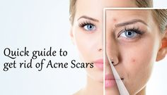 Quick Guide To Get Rid of Acne Scars