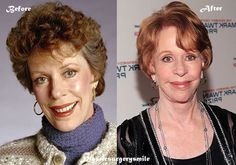 Carol Burnett Plastic Surgery Before And After #omg #CarolBurnett #plasticsurgery