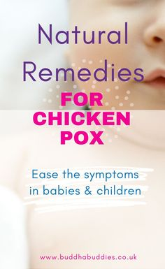 Natural remedies for helping with the symptoms of chicken pox. Great for babies and kids. Kids And Parenting, Parenting Hacks, Newborn Activities, Chicken Pox, Baby Yoga, Postpartum Care, Baby Massage, Baby Sensory, New Mums