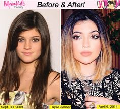 "Kylie Jenner before and after? Is this the same girl? I like the glamorous ""after"" photo."