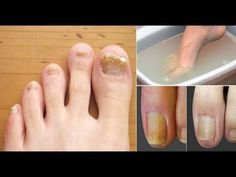 This Super Easy 2 Ingredient Recipe Will Eliminate Your Nail Fungus Forever - YouTube