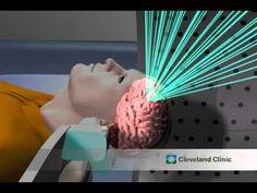 Gamma Knife Brain Surgery: Home Same Day