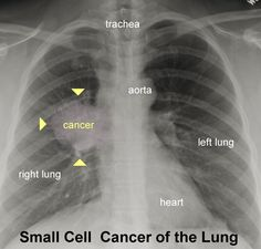 X-ray of Lung Cancer | Xrays and CT Scans of Lung Cancer- Please don't smoke...