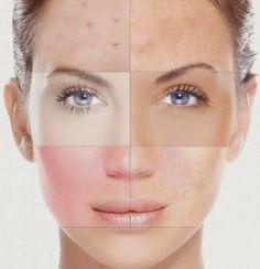 eliminar acné definitivamente