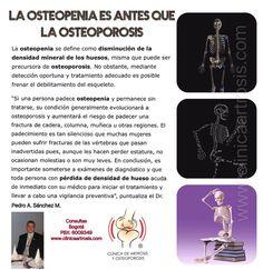 Osteopenia, osteogenesis tipo I, fragilidad ósea, bajá masa ósea, susceptibilidad a las fracturas diagnósticos que requieren un manejo y valoración médicas especializadas por ortopedistas y traumatologos.Visítenos en la Clínica de Artrosis y Osteoporosis www.clinicaartrosis.com PBX: +571-6836020, Teléfono Movil: +57-300-2597226 en Bogotá - Colombia.
