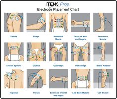 TENS unit electrode placement chart for different sports/life injuries.