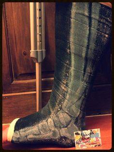 Cast xray on a broken leg painting