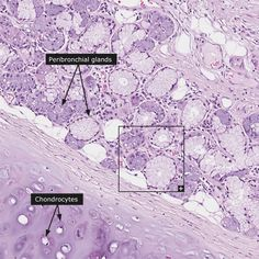 Normal: Bronchus - submucosa (insert: 200x)