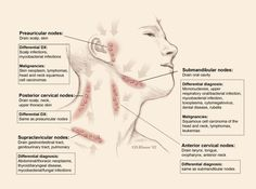 Lymphadenopathy is increase in number and size of lymph nodes due to various causes. Learn all about causes of lymphadenopathy Lupus Diagnosis, Interesting Health Facts, Swollen Lymph Nodes, Acupressure Therapy, Lymphatic Drainage Massage, Medical Anatomy, Muscle Anatomy, Lymphatic System, Physiology