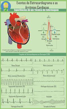 Eventos do Eletrocardiograma e as Arritmias Cardíacas Medical Students, Nursing Students, Cardiac Nursing, Medicine Student, School Study Tips, Reiki, Med Student, School Motivation, Medical Science